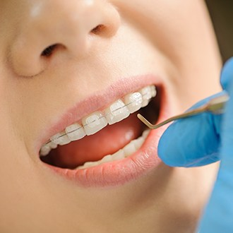 Dentist placing clear and ceramic braces
