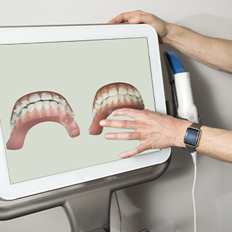 Digital dental impressions on chairside computer screen