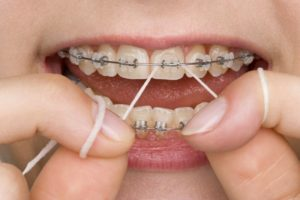 Closeup of someone flossing with braces